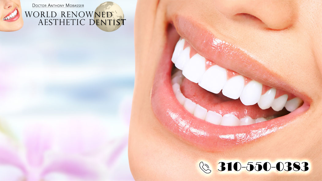 Why You Want Cosmetic Dentistry in Los Angeles