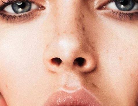 how to enhance your freckles